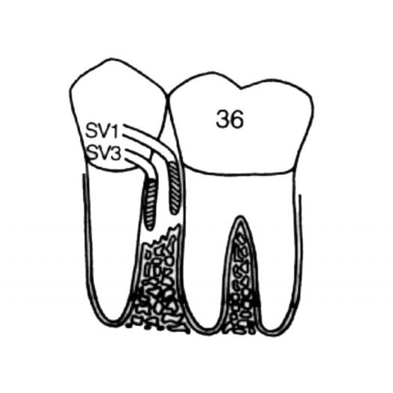 Кюрета пародонтологическая для квадрантов 1 и 3 Interproximal Curette SV 1-3 LM 251-253
