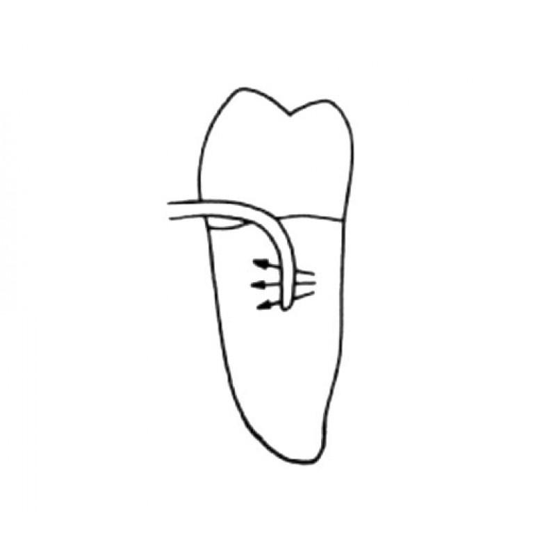 Кюрета пародонтологическая для квадрантов 2 и 4 Interproximal Curette SV 2-4 LM 252-254