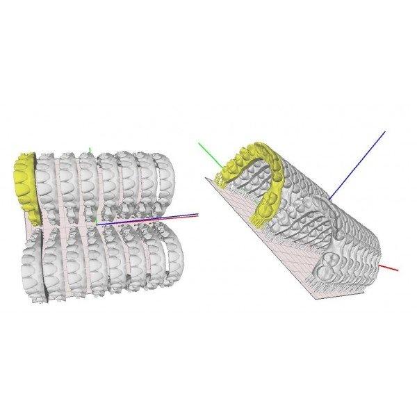 Basic (Dental) - профессиональный 3D-принтер для стоматологии