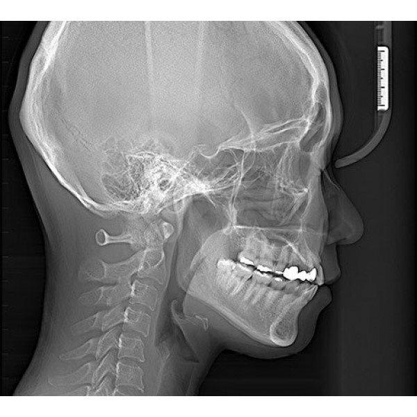 RAYSCAN Symphony a + 120 М3DS - ортопантомограф с цефалостатом (OneShot) 30х25 см и компьютерным томографом 3D (4х13)*(3х10) см