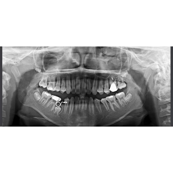 RAYSCAN Symphony a М3DS – томограф 3 в 1: ортопантомограф и цефалостат (OneShot) 30х25 см, компьютерный томограф 3D 9х9 см