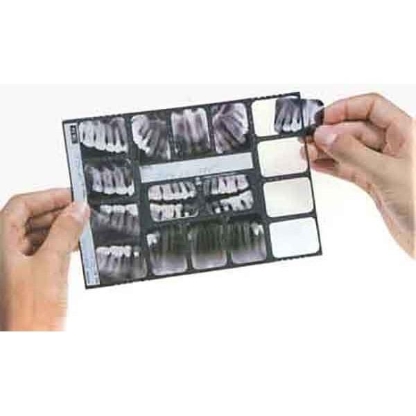 Trollmount TR16 - кармашки для хранения рентген-снимков, несимметричные, 100 шт